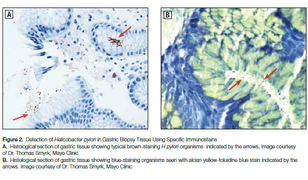 Figure 2. Detection of Helicobacter pylori in Gastric Biopsy Tissue Using Specific Immunostains