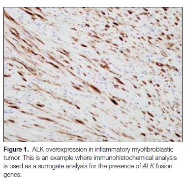Figure 1. ALK overexpression in inflammatory myofibroblastic tumor