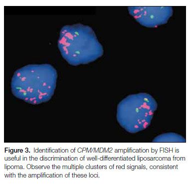 Figure 3. Identification of CPM/MDM2 amplification by FISH is useful in the discrimination of well-differentiated liposarcoma from lipoma.