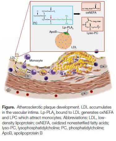 Figure. Atherosclerotic plaque development