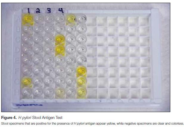 Figure 4. H pylori Stool Antigen Test